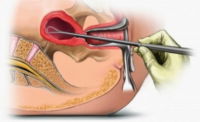 Qué es una biopsia de endometrio (útero)? | ENDOMETRIO
