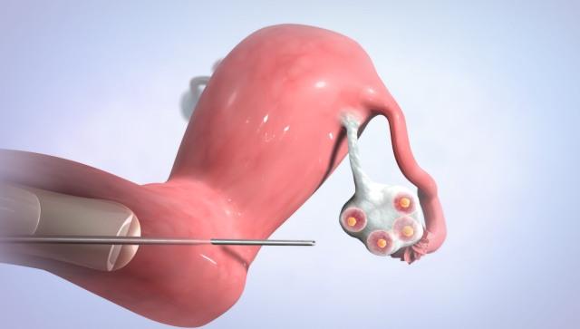 pólipos endometriales embarazo