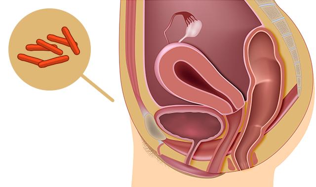 Infeccion en el utero causas