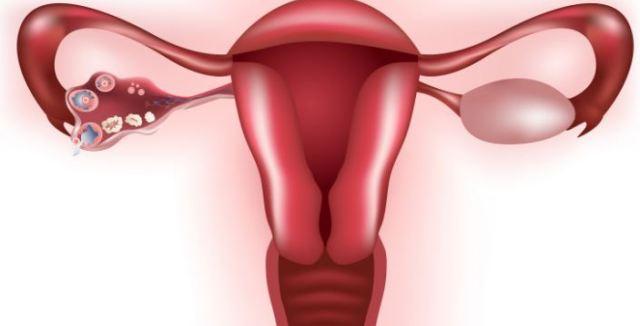Quistes en los Ovarios: Síntomas, Causas, Tipos, Tratamiento ...