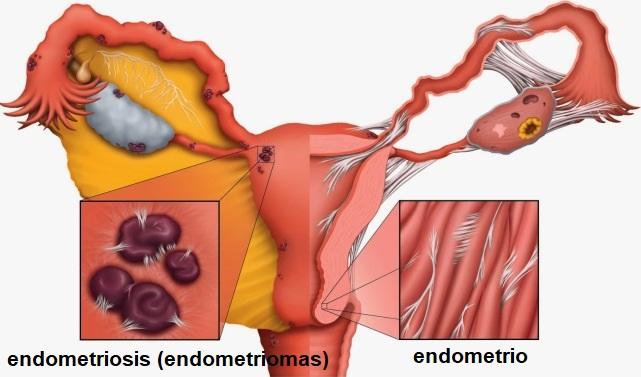 como curar la endometriosis de forma natural