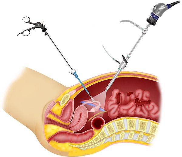 Procedimiento laparoscópico